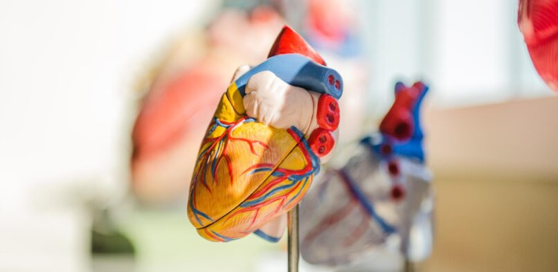 Inflammation: What really causes heart disease.
